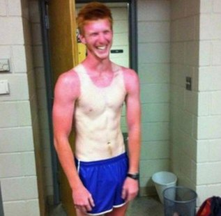 Sunburnt Caucasian